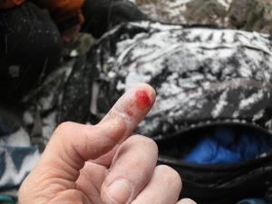 The glorious result of squeezing like hell on that left-hand crimp at the crux.