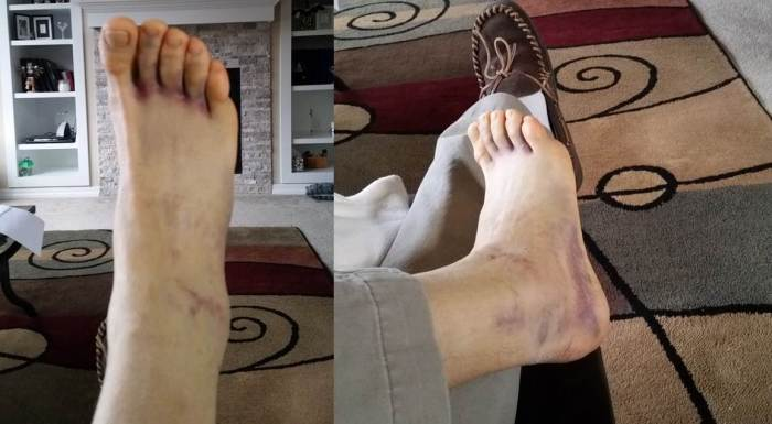Ankle Montage